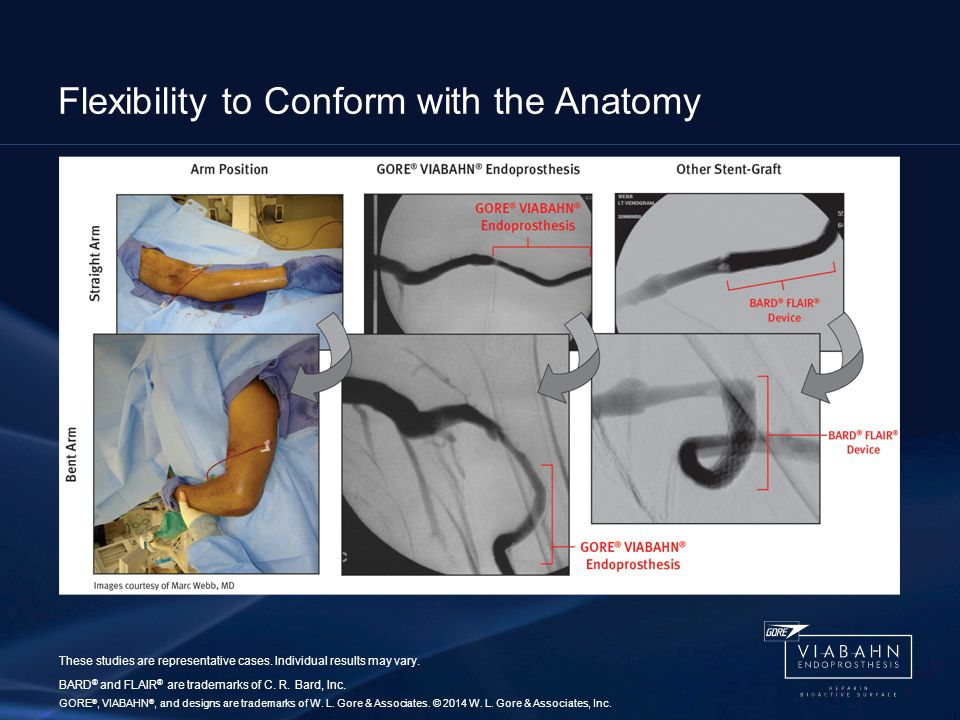 Flexibility to Conform with the Anatomy These studies are representative cases.