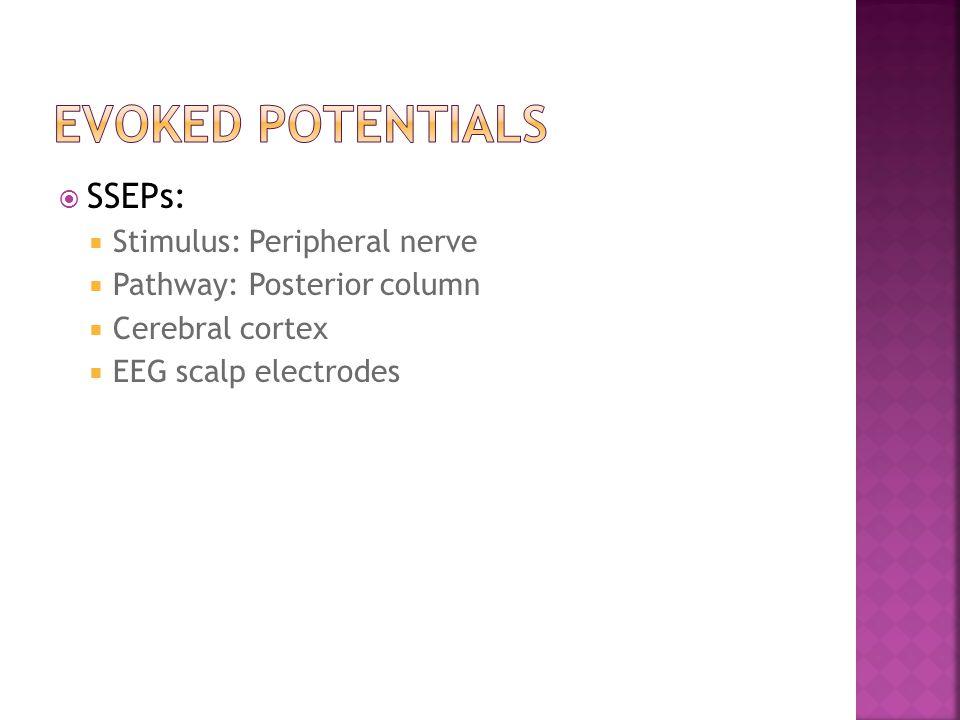  SSEPs:  Stimulus: Peripheral nerve  Pathway: Posterior column  Cerebral cortex  EEG scalp electrodes