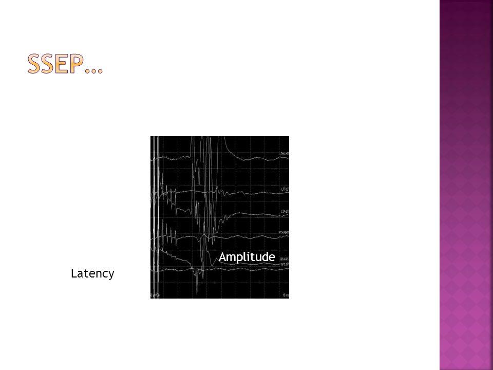 Latency Amplitude