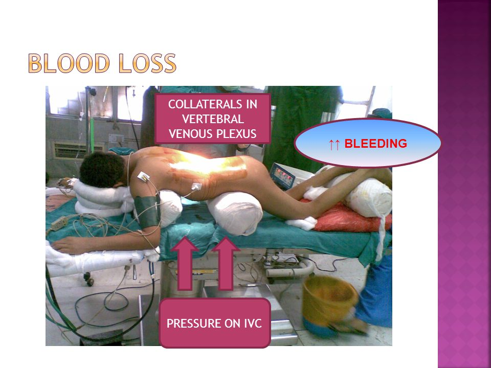 PRESSURE ON IVC COLLATERALS IN VERTEBRAL VENOUS PLEXUS ↑↑ BLEEDING