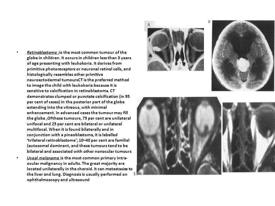 Cavernous haemangioma is the most common orbital tumour.