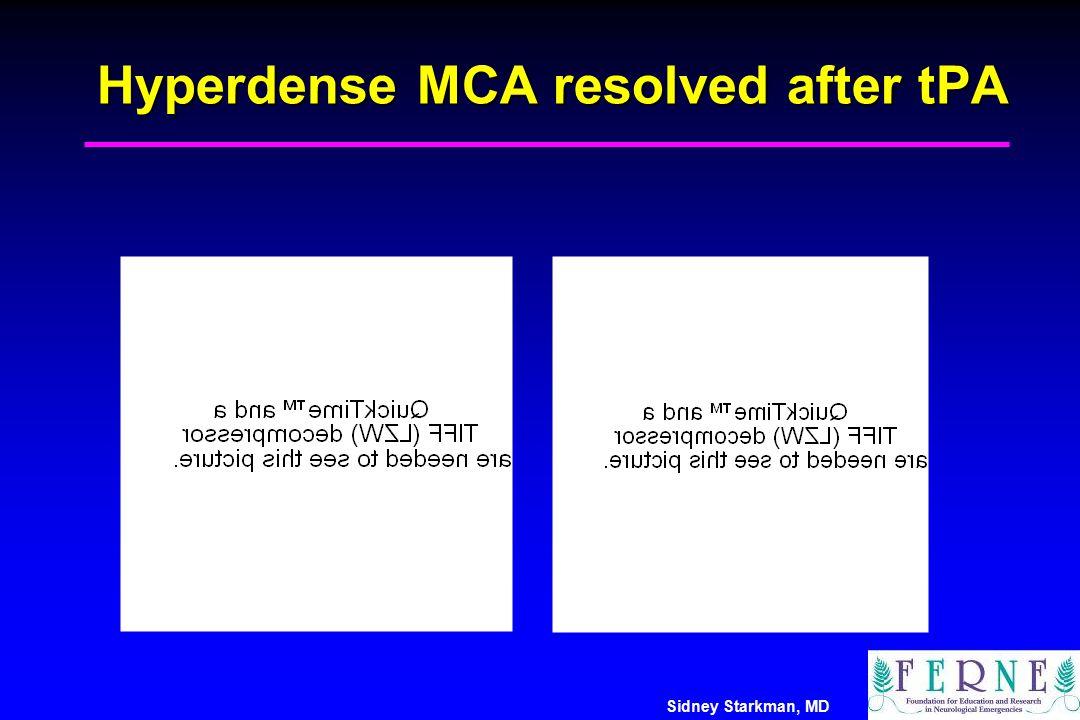 Sidney Starkman, MD Hyperdense MCA resolved after tPA