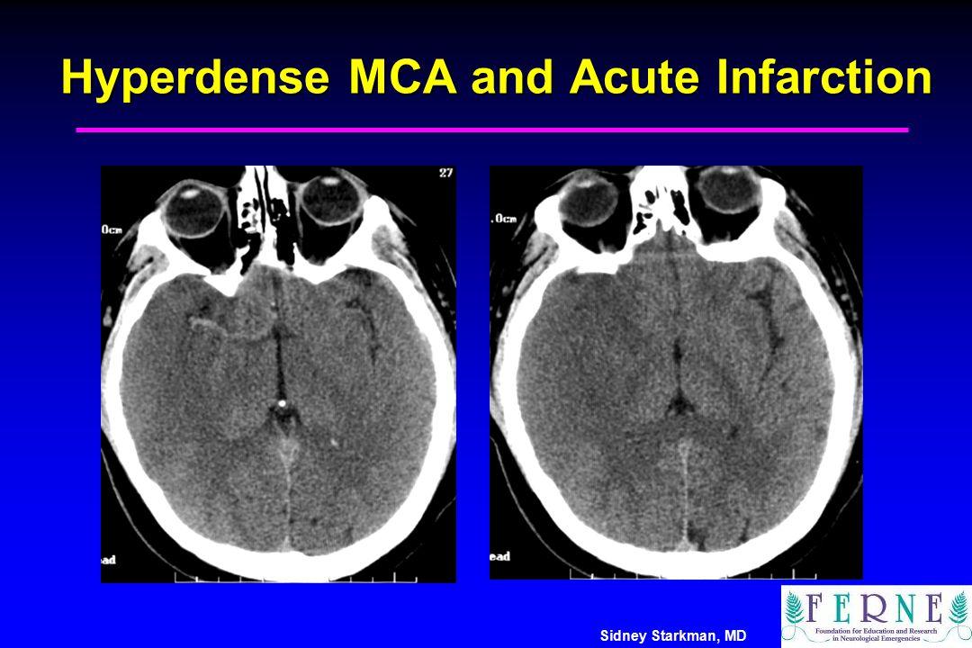 Sidney Starkman, MD Hyperdense MCA and Acute Infarction