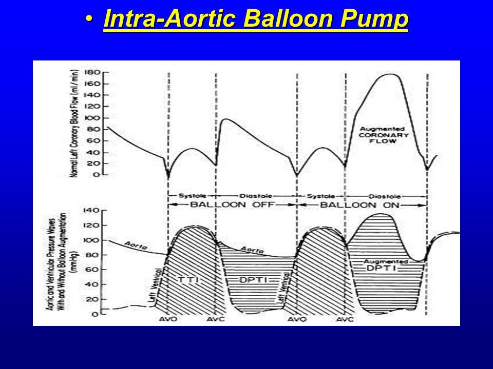 Intra-Aortic Balloon PumpIntra-Aortic Balloon Pump