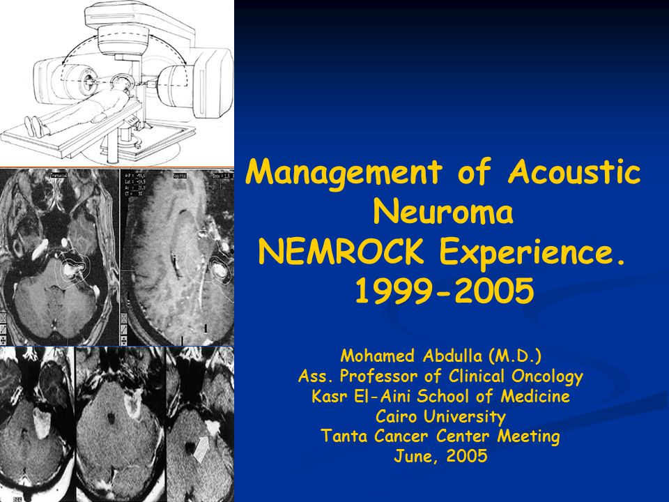 Management of Acoustic Neuroma NEMROCK Experience.