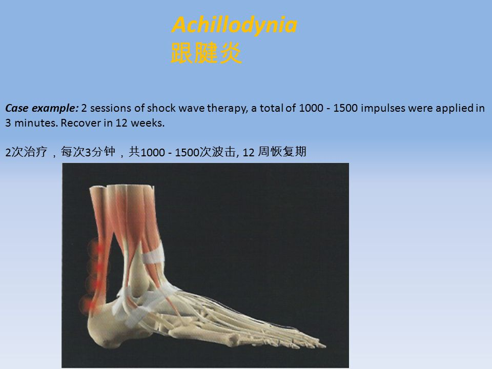 Achillodynia 跟腱炎 Case example: 2 sessions of shock wave therapy, a total of 1000 - 1500 impulses were applied in 3 minutes.