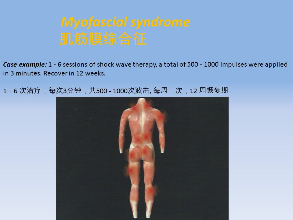 Myofascial syndrome 肌筋膜综合征 Case example: 1 - 6 sessions of shock wave therapy, a total of 500 - 1000 impulses were applied in 3 minutes.