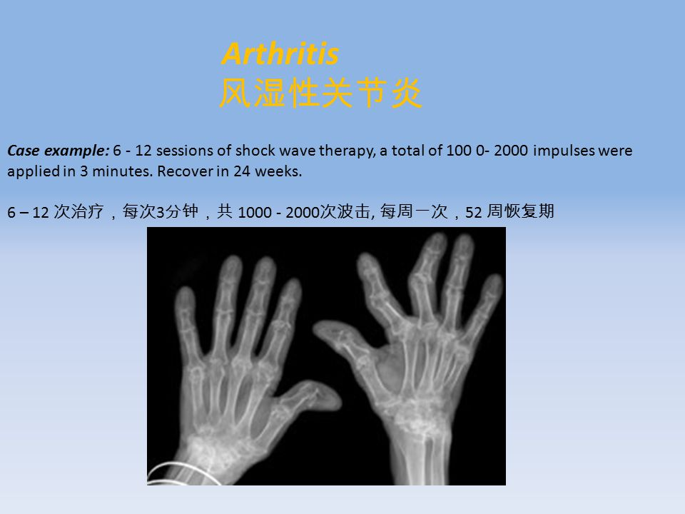 Arthritis 风湿性关节炎 Case example: 6 - 12 sessions of shock wave therapy, a total of 100 0- 2000 impulses were applied in 3 minutes.