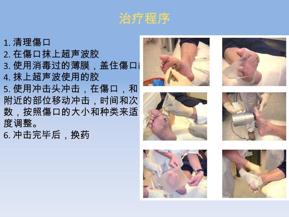 治疗程序 1. 清理傷口 2. 在傷口抹上超声波胶 3. 使用消毒过的薄膜,盖住傷口 il 4.