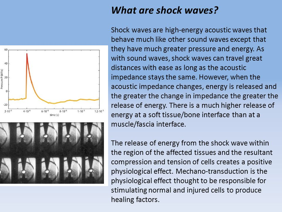 What are shock waves.