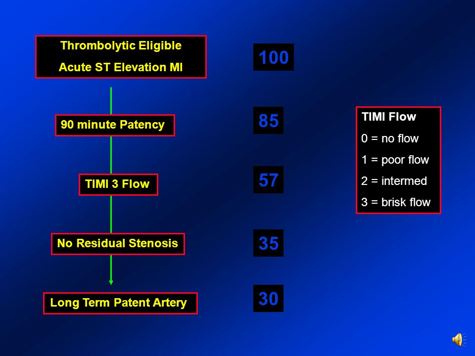 Thrombolytic Eligible Acute ST Elevation MI 90 minute Patency TIMI 3 Flow No Residual Stenosis Long Term Patent Artery 100 30 85 57 35 TIMI Flow 0 = no flow 1 = poor flow 2 = intermed 3 = brisk flow