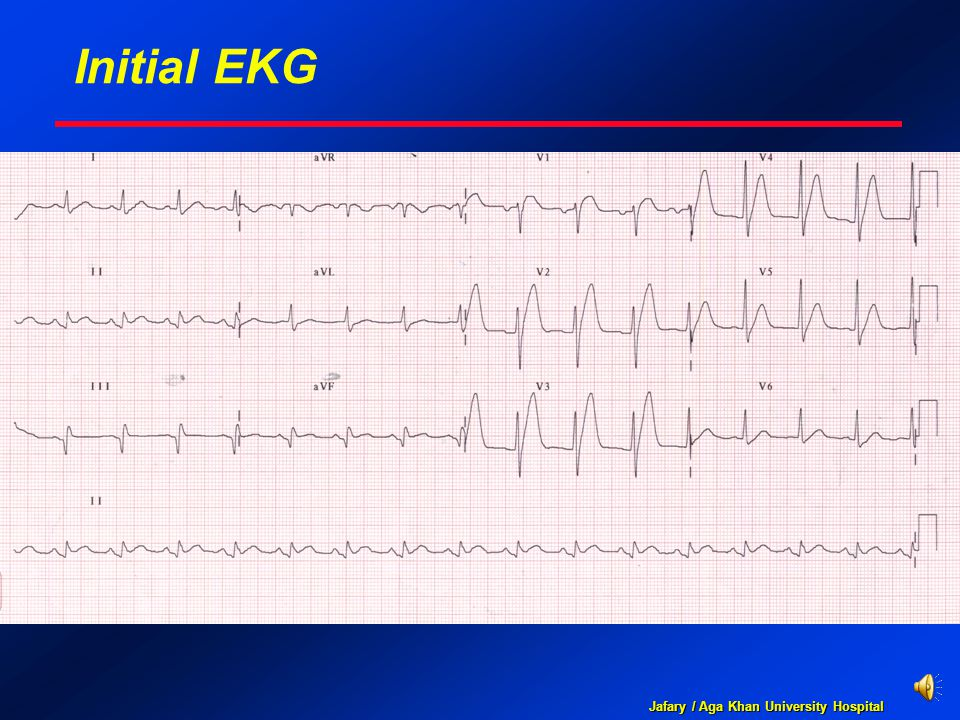 Jafary / Aga Khan University Hospital Initial EKG