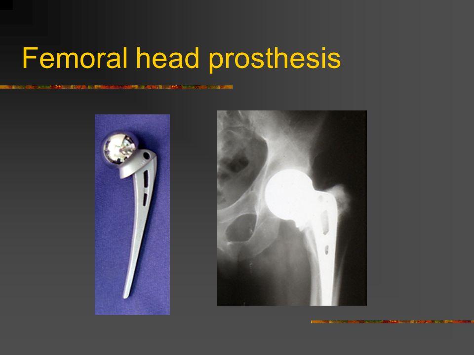 Femoral head prosthesis