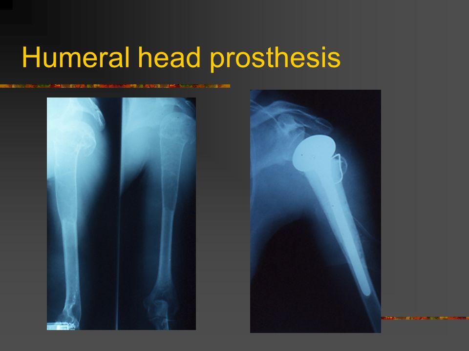 Humeral head prosthesis