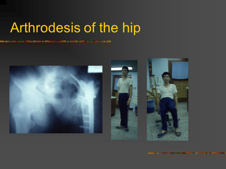 Arthrodesis of the hip