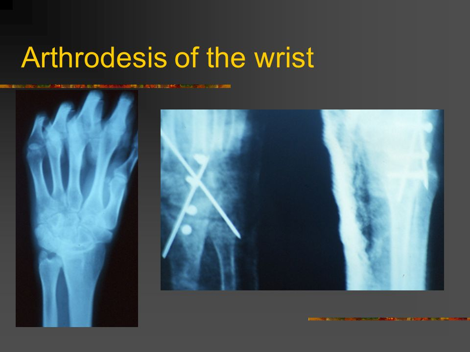 Arthrodesis of the wrist