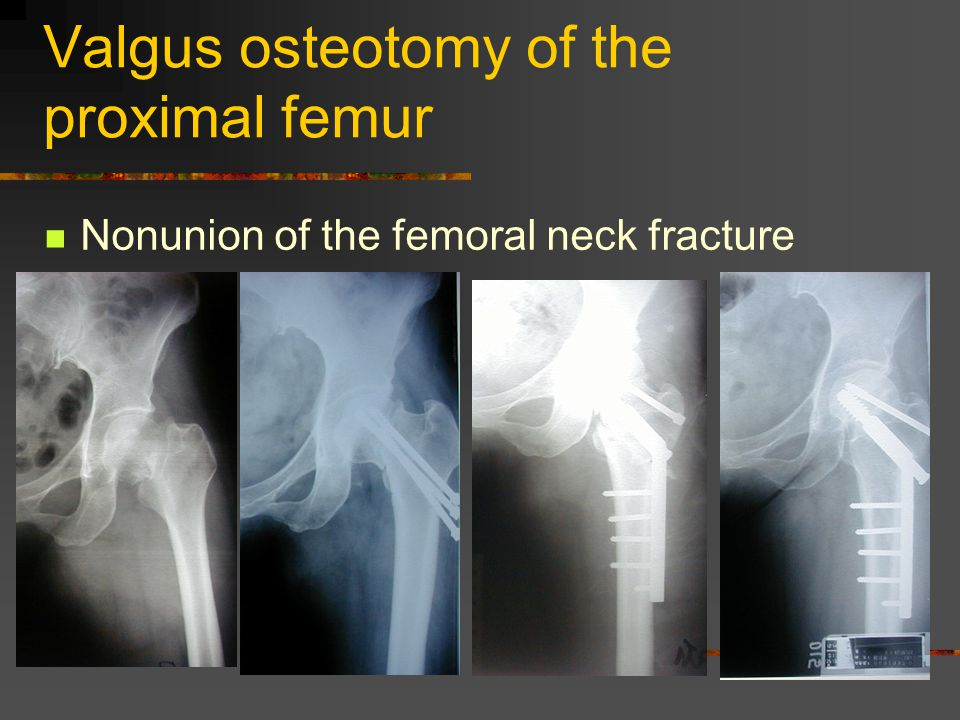 Valgus osteotomy of the proximal femur Nonunion of the femoral neck fracture