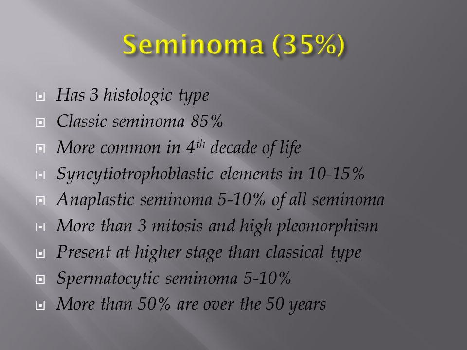 Figure 13a.Testicular germ cell tumor. Chavhan G B et al.