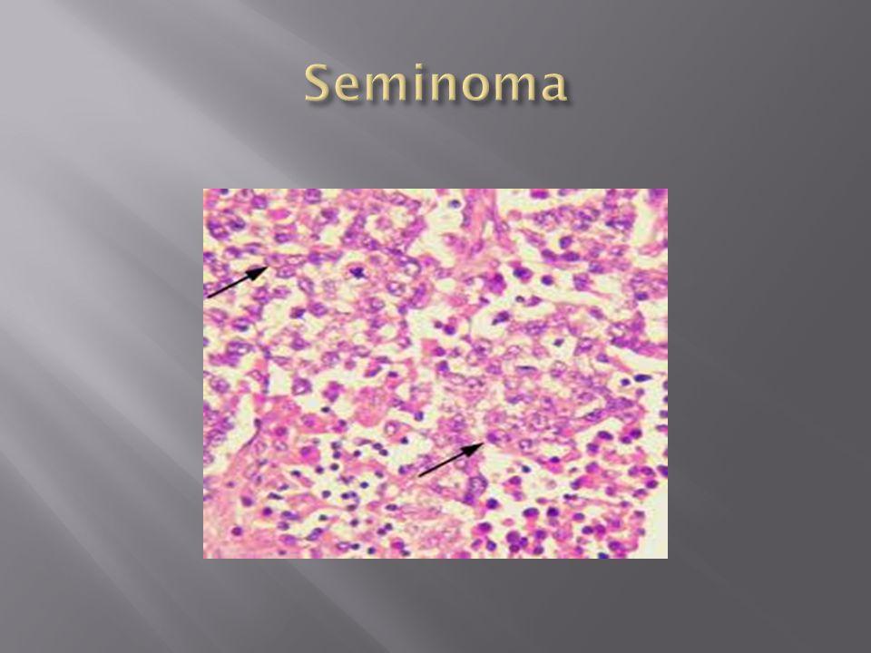  5-6% of all testis tumors  Leydig cell tumors  Sertoli cell tumors  Gonadoblastoma
