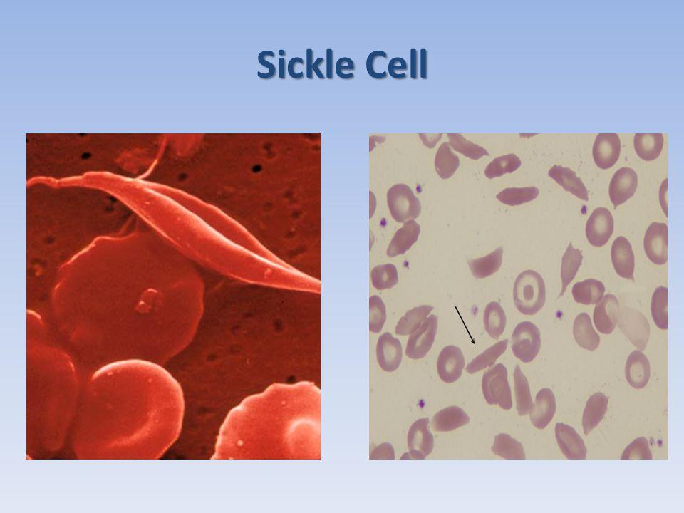SC Haemoglobin Electrophoresis