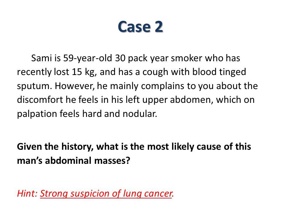 CT scan showing metastatic liver cancer