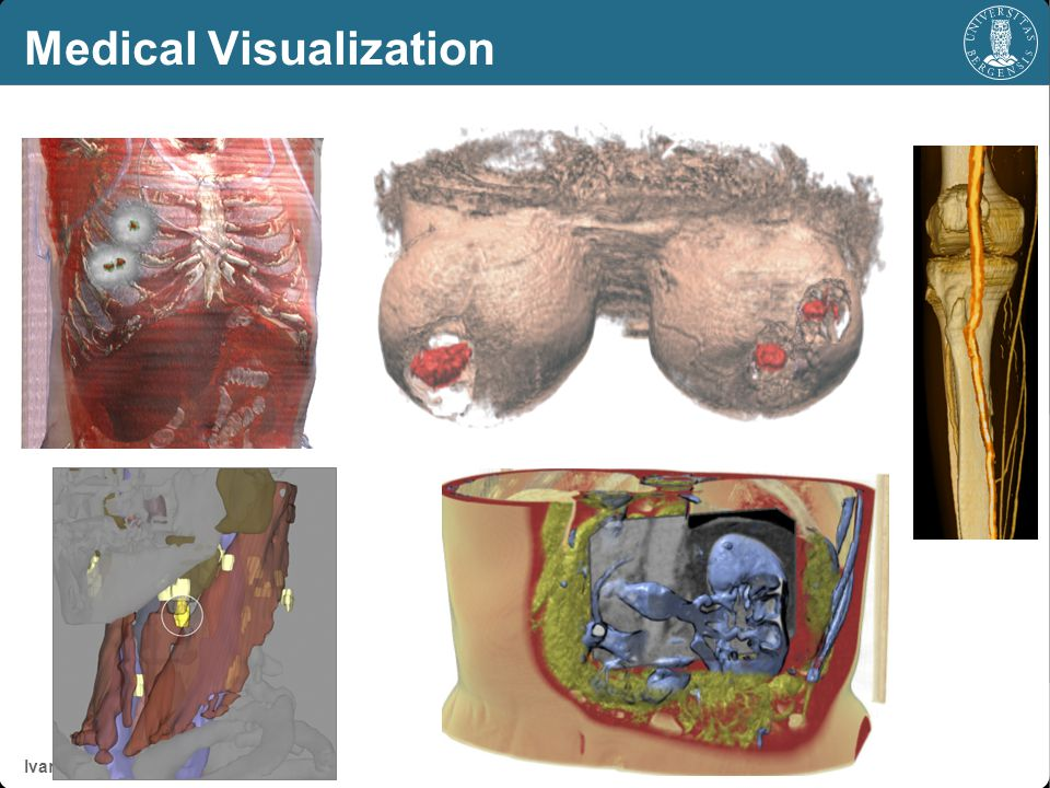 Ivan Viola & co. Medical Visualization Thanks for your attention!
