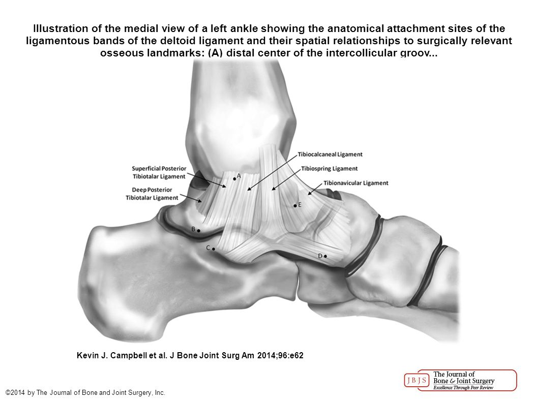 Illustration of the medial view of a left ankle showing the anatomical attachment sites of the ligamentous bands of the deltoid ligament and their spatial relationships to surgically relevant osseous landmarks: (A) distal center of the intercollicular groov...