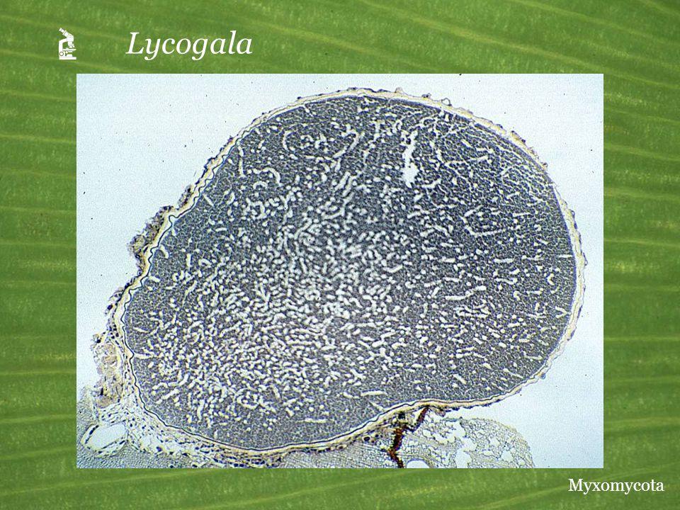  Lycogala Myxomycota