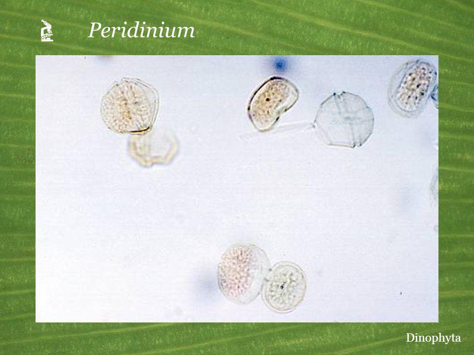  Peridinium Dinophyta