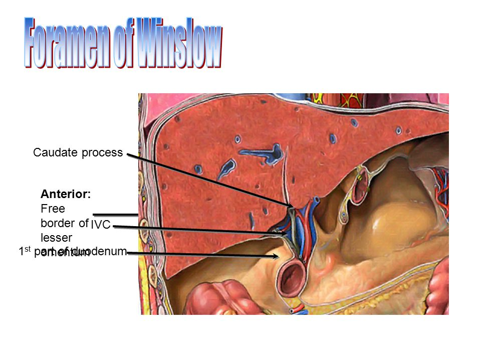 Anterior: Free border of lesser omentum Caudate process 1 st part of duodenum IVC