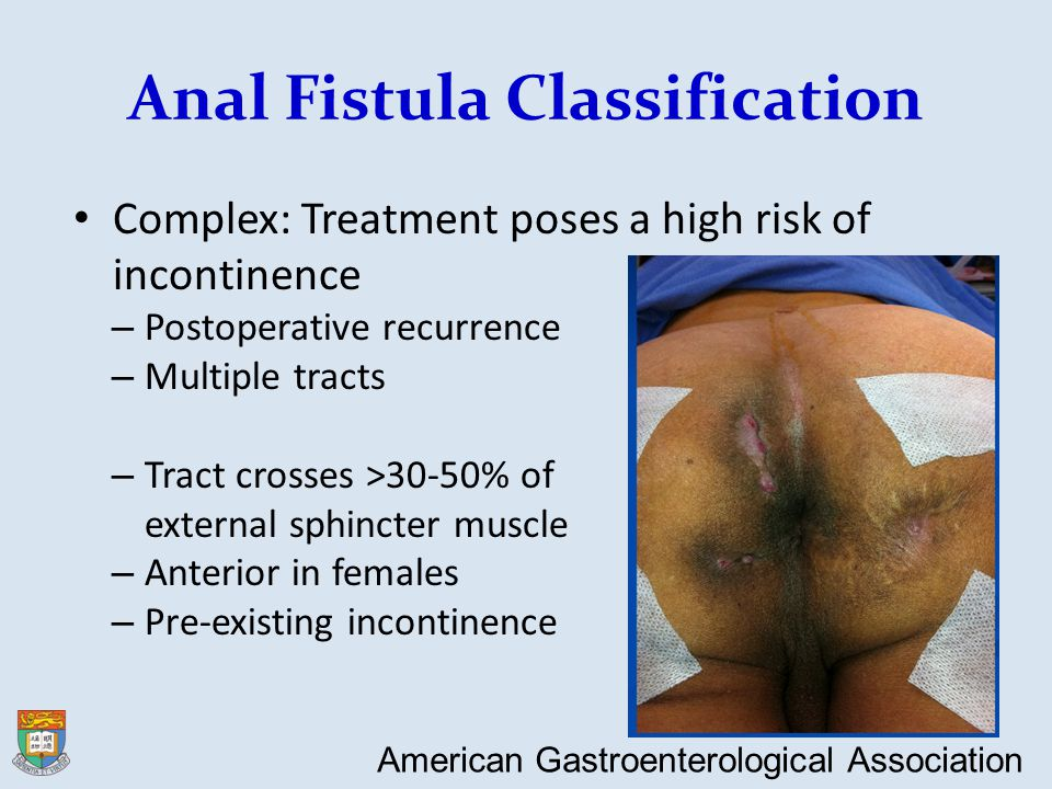 Complex Anal Fistula - Management Approach Assessment – To rule out ongoing anorectal sepsis – To delineate the anatomy of fistula tracts To look for non-cryptoglandular causes To look for any causes of poor wound healing – Immunocompromised – steroid application Definitive treatment