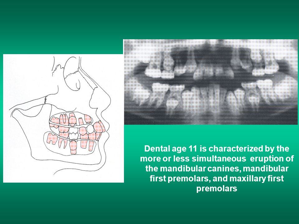 Dental age 11 is characterized by the more or less simultaneous eruption of the mandibular canines, mandibular first premolars, and maxillary first premolars