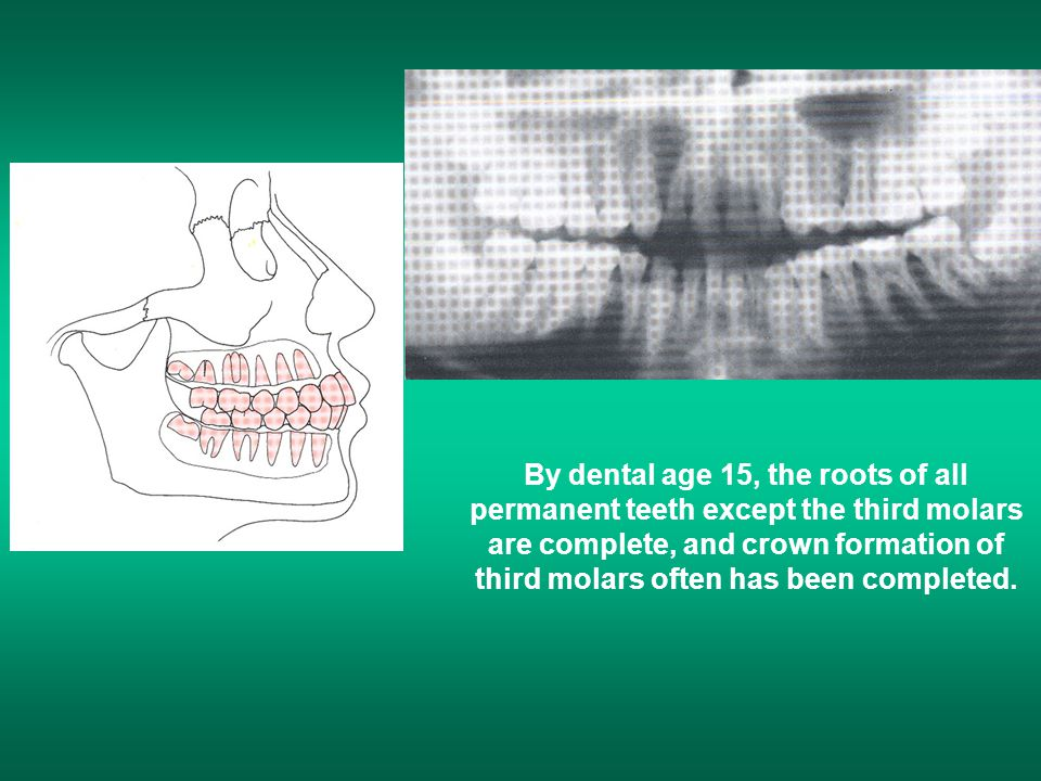 By dental age 15, the roots of all permanent teeth except the third molars are complete, and crown formation of third molars often has been completed.