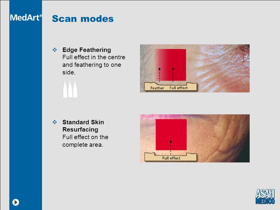 Scan modes  Edge Feathering Full effect in the centre and feathering to one side.  Standard Skin Resurfacing Full effect on the complete area.