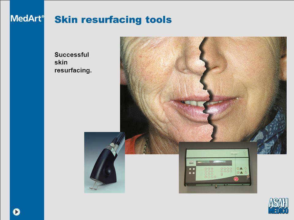 Skin resurfacing tools Successful skin resurfacing.