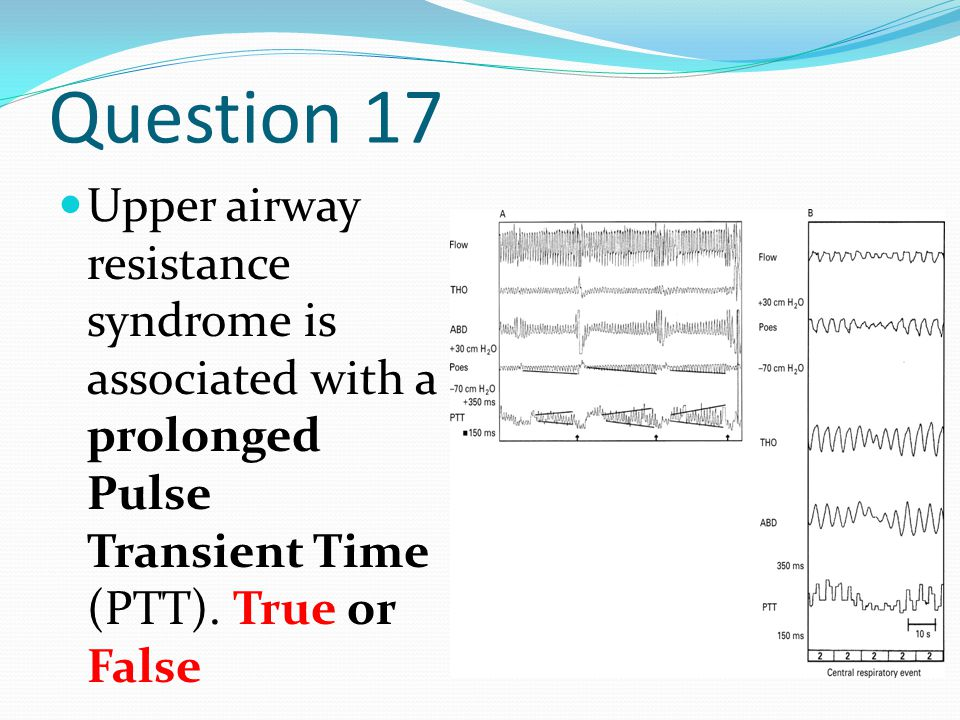 Question 17 Upper airway resistance syndrome is associated with a prolonged Pulse Transient Time (PTT). True or False