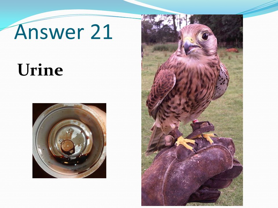 Answer 21 Urine
