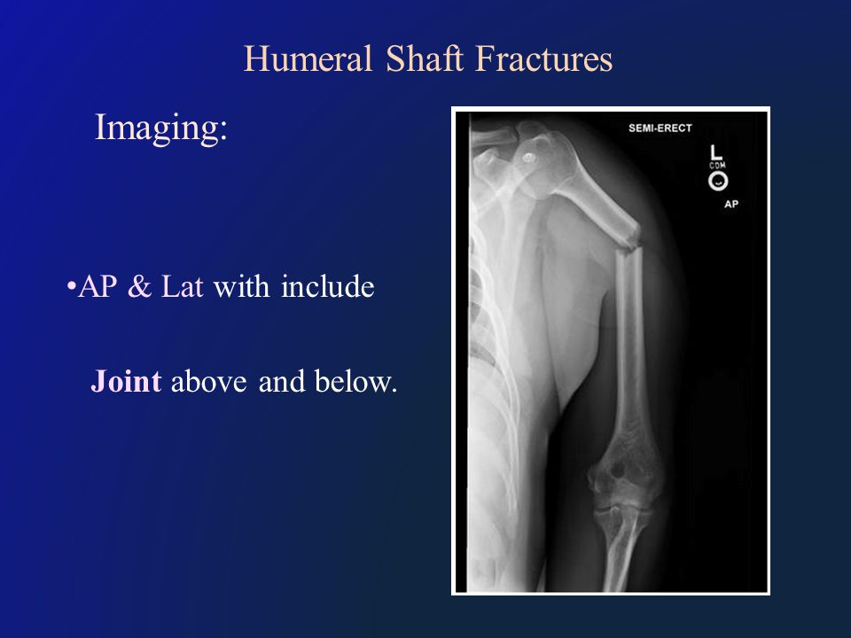 Humeral Shaft Fractures Imaging: AP & Lat with include Joint above and below.