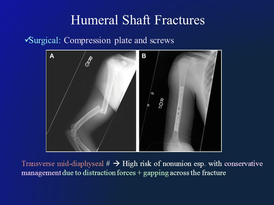 Humeral Shaft Fractures Surgical: Compression plate and screws Transverse mid-diaphyseal #  High risk of nonunion esp.