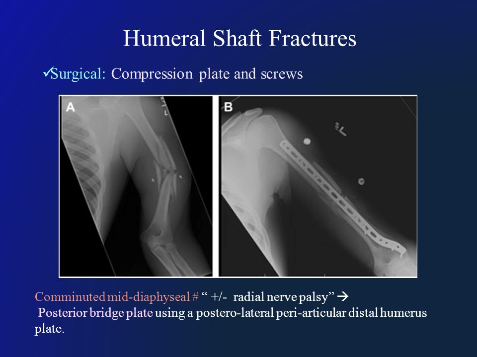 Humeral Shaft Fractures Surgical: Compression plate and screws Comminuted mid-diaphyseal # +/- radial nerve palsy  Posterior bridge plate using a postero-lateral peri-articular distal humerus plate.