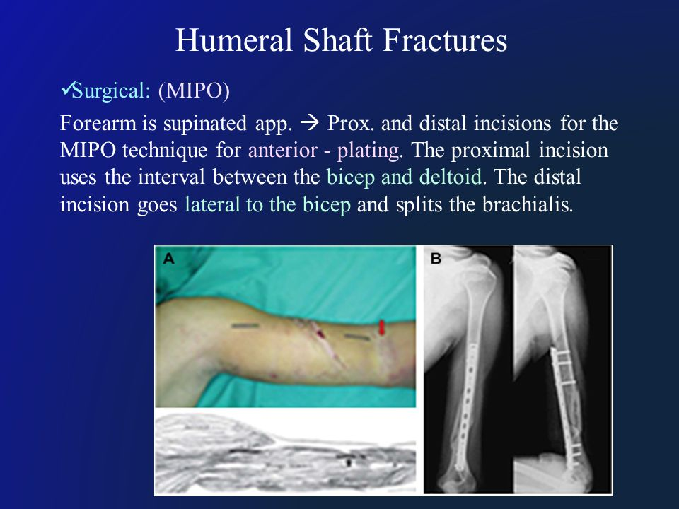 Humeral Shaft Fractures Surgical: (MIPO) Forearm is supinated app.