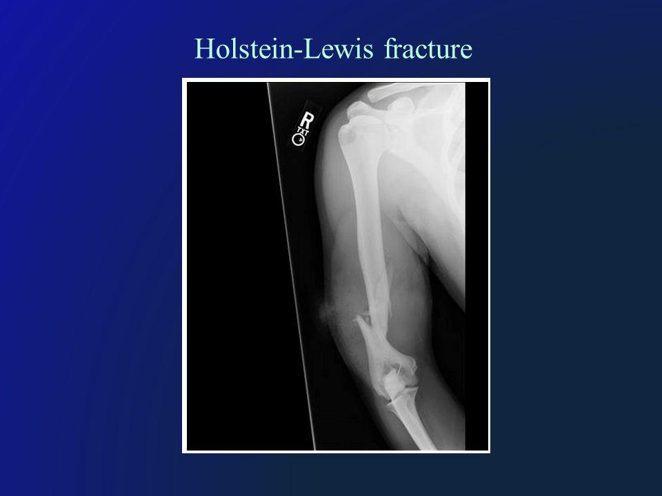 Holstein-Lewis fracture