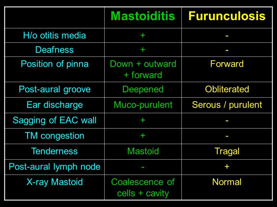 MastoiditisFurunculosis H/o otitis media+- Deafness+- Position of pinnaDown + outward + forward Forward Post-aural grooveDeepenedObliterated Ear disch