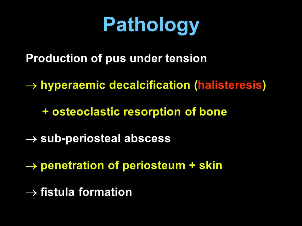 Pathology Production of pus under tension  hyperaemic decalcification (halisteresis) + osteoclastic resorption of bone  sub-periosteal abscess  pen