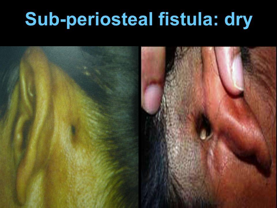 Sub-periosteal fistula: dry