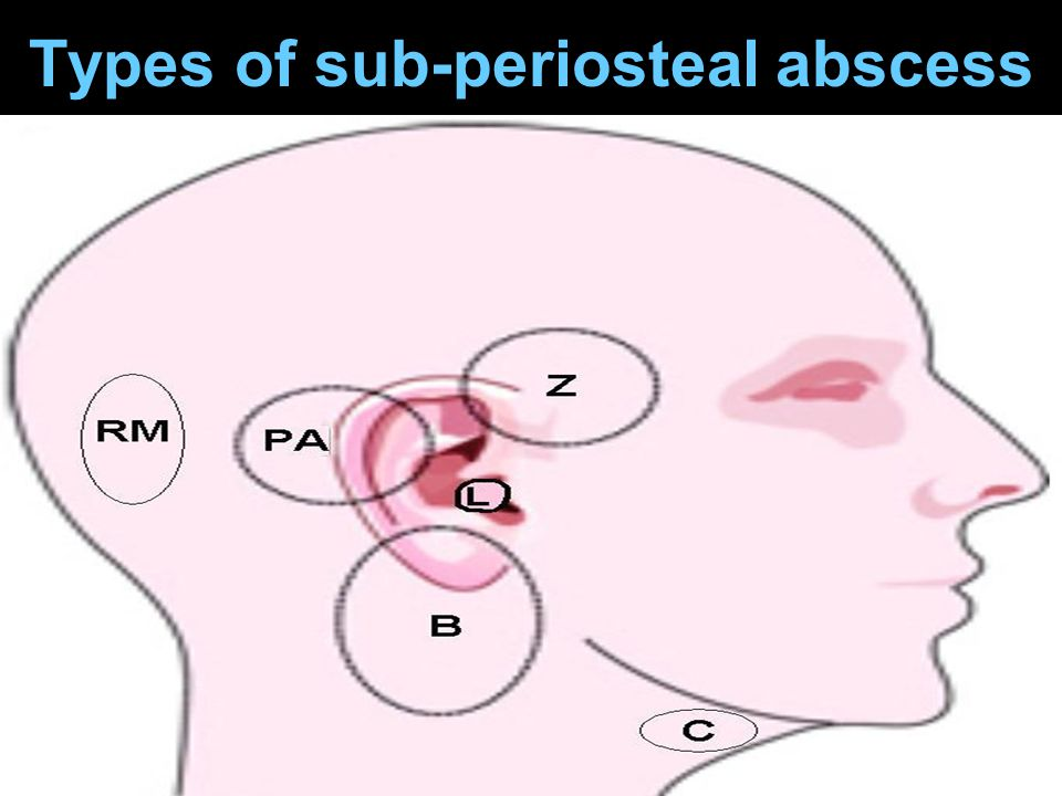 Types of sub-periosteal abscess