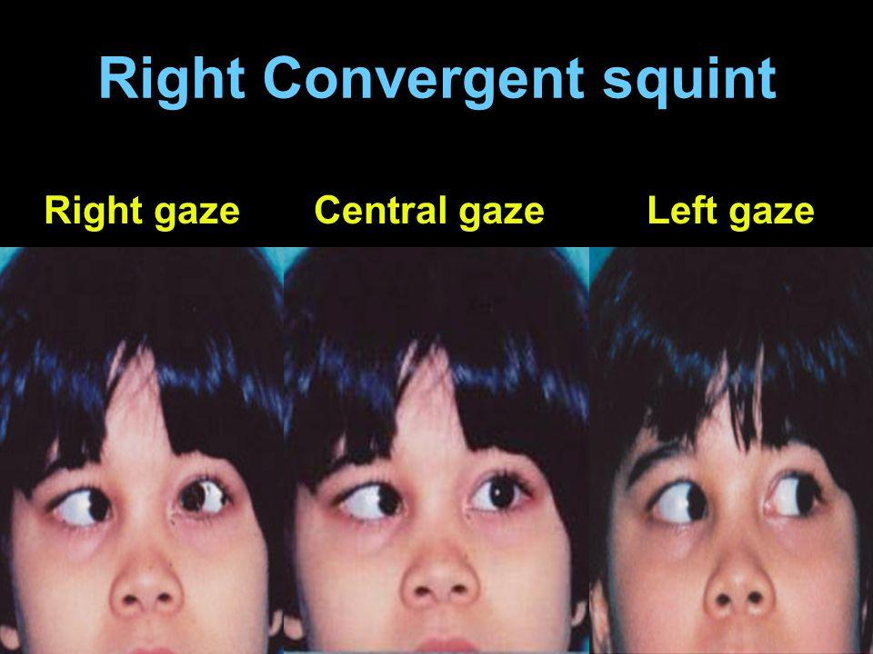 Right Convergent squint Right gazeCentral gazeLeft gaze