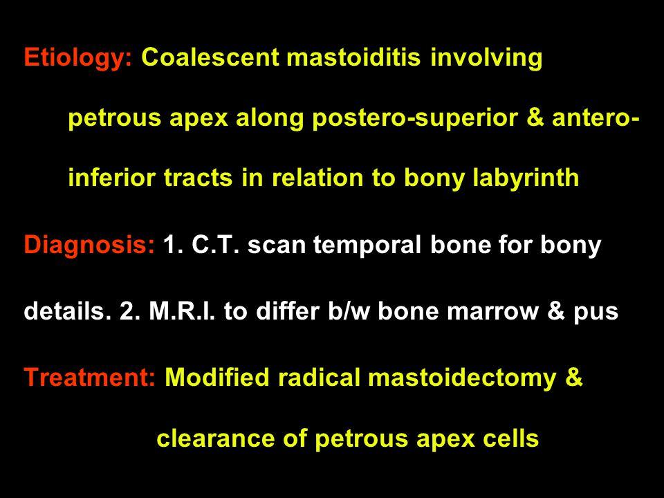Etiology: Coalescent mastoiditis involving petrous apex along postero-superior & antero- inferior tracts in relation to bony labyrinth Diagnosis: 1. C