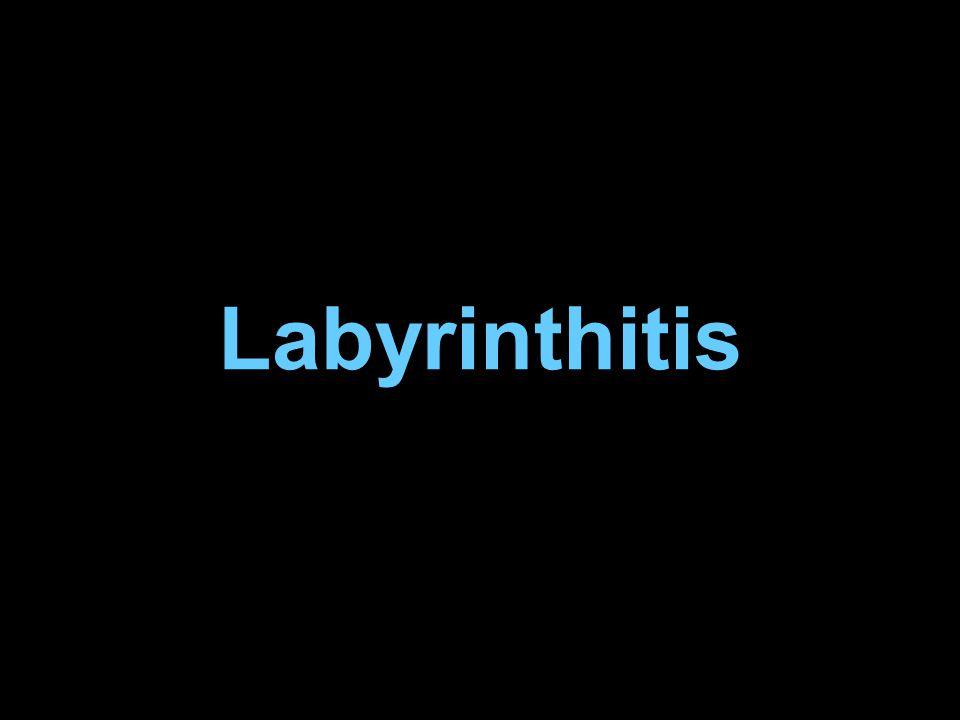 Labyrinthitis