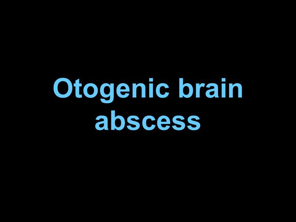 Otogenic brain abscess
